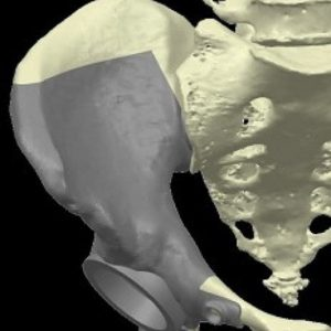 Torino, ortopedici e ingegneri ricostruiscono in 3D un bacino dopo il sarcoma