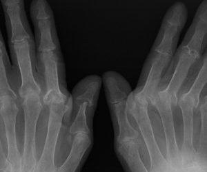 Artrite reumatoide, Baricitinib rallenta la progressione radiografica di malattia rispetto ai farmaci convenzionali e al placebo