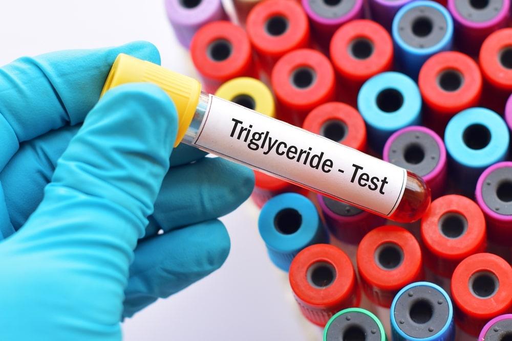 Trigliceridi alti: cosa sapere