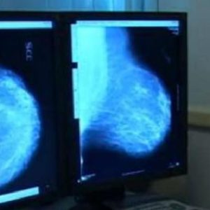 Carcinoma mammario metastatico, ecco le nuove linee guida globali