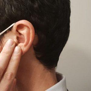 Il coronavirus attacca anche l'udito?