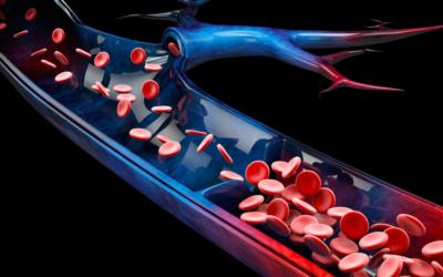 Flebite: cos'è, cause e sintomi
