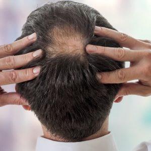 """Invecchiamento, nuova ipotesi sulla perdita dei capelli: colpa della """"fuga"""" di cellule staminali dal bulbo pilifero"""