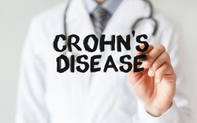 Morbo di Crohn: cos'è? Sintomi e cause