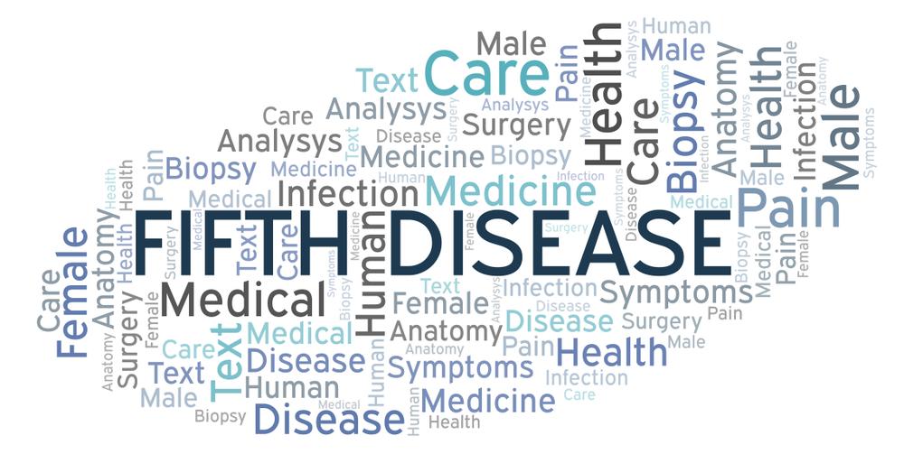 Quinta malattia: cos'è? Sintomi e cure